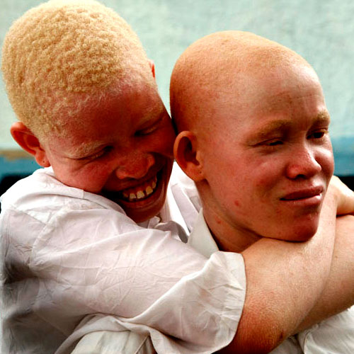 On estime que plus de 150.000 albinos vivent en Tanzanie; un certain nombre d'albinos ont fui vers la région de Dar es Salaam (Maison de la Paix ou Havre de Paix) la plus grande ville de Tanzanie, parce qu'ils se sentent plus en sécurité dans un milieu urbain. On pense que la Tanzanie possède la plus grande population d'albinos en Afrique.