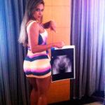 La radiographie de Cibelle Ribeiro  (Photo: Cacau Oliver / Divulgação)